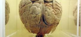 Modelando un cerebro: enfermedades degenerativas y neurorregeneración