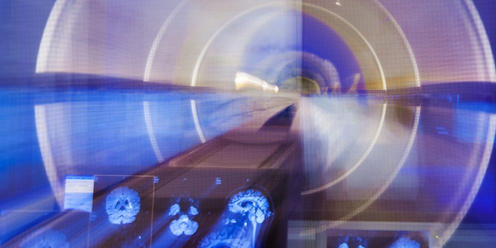 El cerebro humano visto desde la física hoy